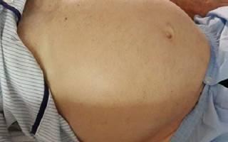 Сколько живут с циррозом печени, прогнозы специалистов