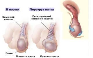 Киста яичка у мужчин – причины, симптомы и лечение кисты яичка у мужчин