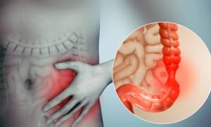 Синдром раздраженного кишечника (СРК) – симптомы, причины, лечение, диета