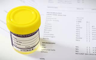 Причины повышенного уровня лейкоцитов в моче у мужчин