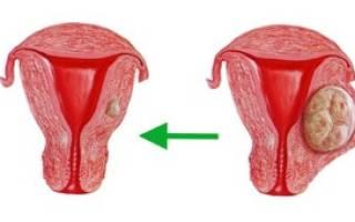 Кисты на шейке матки: опасно ли это, причины возникновения, симптомы, виды и классификация МКБ 10, лечение кисты шейки матки в Москве