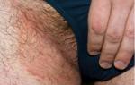 Неприятный запах между ног у мужчин