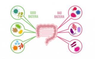 Что такое дисбиоз кишечника