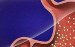 Слизь в желудке – причины, лечение, профилактика