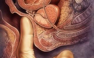 Как диагностировать и чем лечить острый простатит