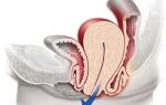 Операция по поводу опущения матки