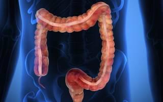 Энтероколит кишечника: симптомы, лечение и питание