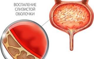Чем отличается цистит от уретрита: информация от врачей