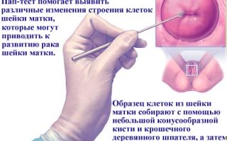 Онкоцитология шейки матки — мазок на онкоцитологию. Цитограмма воспаления с расшифровкой