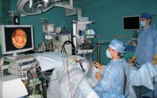 Эндоскопия кишечника подготовка