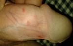 Трещины на крайней плоти после секса