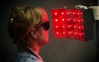 Фотодинамическое лечение базалиомы