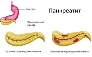 Кукурузная мука при панкреатите