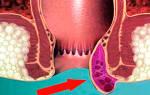 Анузол при кровоточащем геморрое