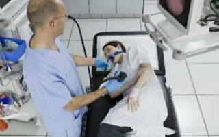 Гастроскопия желудка. Как делают без глотания зонда, под наркозом во сне. Как подготовиться, диета. Что показывает обследование, альтернативы