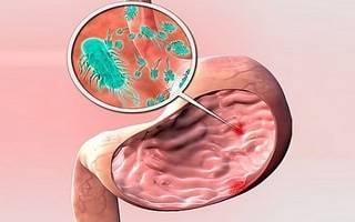Неатрофический гастрит — что это такое, симптомы и лечение