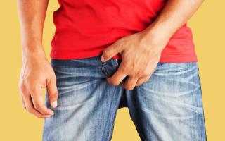 Герпес на половом члене у мужчин: симптомы и лечение
