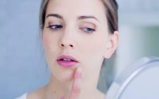 Таблетки от герпеса на лице