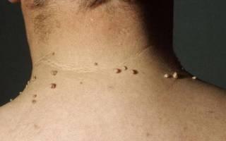 Папилломы на шее. Удаление папиллом — методы и средства
