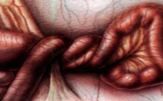 Завороток кишок у ребенка