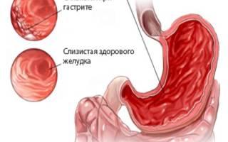 Мед при гастрите: можно ли употреблять при язве желудка с повышенной кислотностью и панкреатите, как вылечить заболевание и рецепты для этого