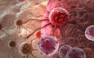 Продукты противопоказанные при онкологии