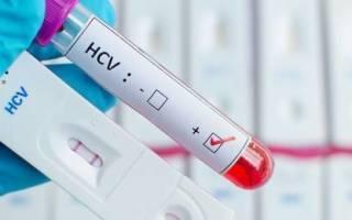 Как пишется гепатит с
