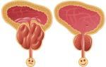 Влияние Петрушки на потенцию мужчин, лечебные свойства корня Петрушки