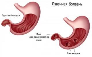 Может ли язва желудка не болеть