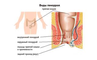 Разновидности геморроя фото лечение