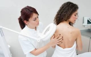 Какой врач лечит папилломы на теле
