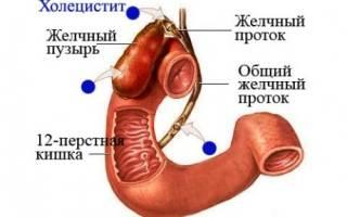 Холецистит у детей: симптомы, лечение, профилактика.