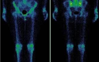 Сцинтиграфия костей скелета — О печени