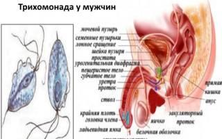 Трихомониаз у мужчин — признаки, диагностика, курс лекарственной терапии и последствия