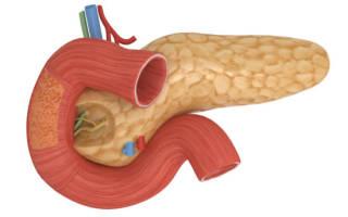 КТ, УЗИ при эктопированной поджелудочной железы в желудке