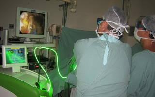 Holep удаление аденомы простаты лазером