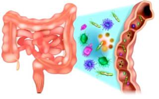 Какие фрукты можно есть при дисбактериозе