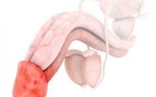 Раздражение головки и крайней плоти у мужчин