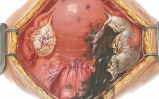 Киста виды гинекология