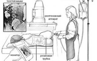 Ирригоскопия кишечника подготовка к исследованию