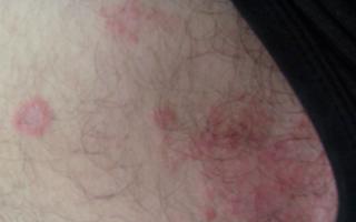 Красные пятна на бедрах: виды, причины образования, методы лечения