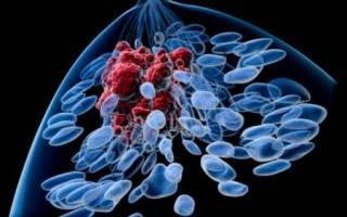 Метастазы при раке предстательной железы