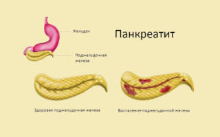 Медицина панкреатит симптомы лечение