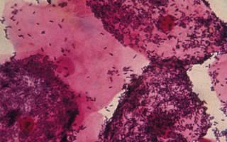 Гарднереллез у женщин: причины, признаки и симптомы, лечение