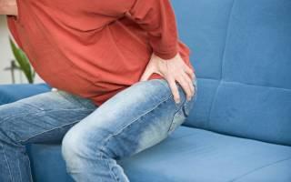Кондиломы прямой кишки: причины и как удаляют?