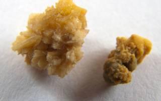 Как выгнать камень из мочеточника