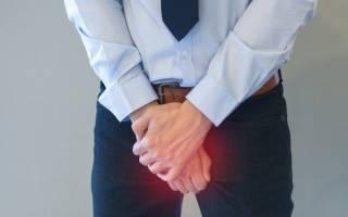 Зуд половых органов и в промежности у мужчин: причины и лечение