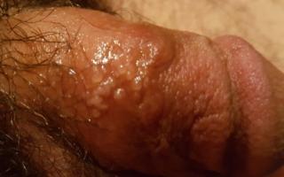 Волдыри на половом члене (пенисе) и мошонке: фото, причины появления и лечение