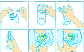 Что такое женский презерватив и как его надевать: фото