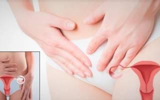 Болят яичники у женщины: причины, что делать